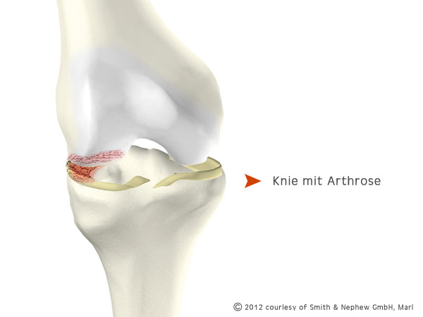 Knie mit Arthrose - copyright: smith & nephew